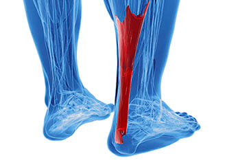 achilles tendon treatment in the Jupiter, FL 33458 area