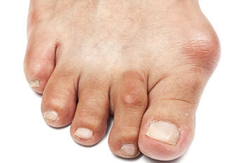 bunions treatment in the Jupiter, FL 33458 area