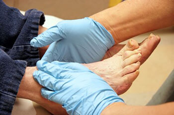 diabetic foot treatment in the Jupiter, FL 33458 area