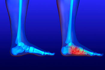 Flat feet and Fallen Arches treatment in the Jupiter, FL 33458 area