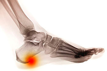 Heel spurs treatment in the Jupiter, FL 33458 area