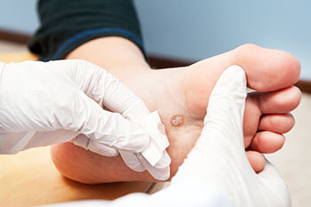 Plantar warts treatment in the Jupiter, FL 33458 area